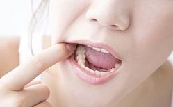 銀歯がある女性に対して男性が思うこと4つ