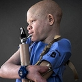 義手のアルビノの少年。左腕は切り落とされた(画像はmetro.co.ukのスクリーンショット)
