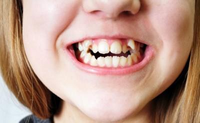 悪い 芸人 歯並び