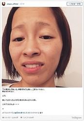 「顔がボラみたい」と写真を公開した小森純(画像はInstagramのスクリーンショット)