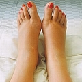 東原亜希 むくみで「足首がなくなった」ことをブログで報告