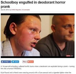 エアゾールのスプレー缶で大火傷を負った英少年(出典:http://swns.com)