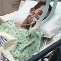 21歳男性の顔の前で電子タバコが爆発(画像はnydailynews.comのスクリーンショット)