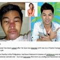 フィリピンのイケメンモデル美容整形に失敗(出典:http://realfarrahgray.com)