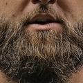 髭の不潔さは便器さながら…!?(画像はmetro.co.ukのスクリーンショット)