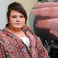 17歳少女、つけ爪接着剤により指先が壊死 (walesonline.co.ukのスクリーンショット)