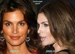 左は2006年10月の写真、右は2009年10月のもの。本人はほくろの変化が気になるようだ。
