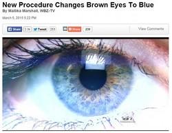 レーザーで茶色の瞳をブルーに変える!?(画像はboston.cbslocal.comのスクリーンショット)