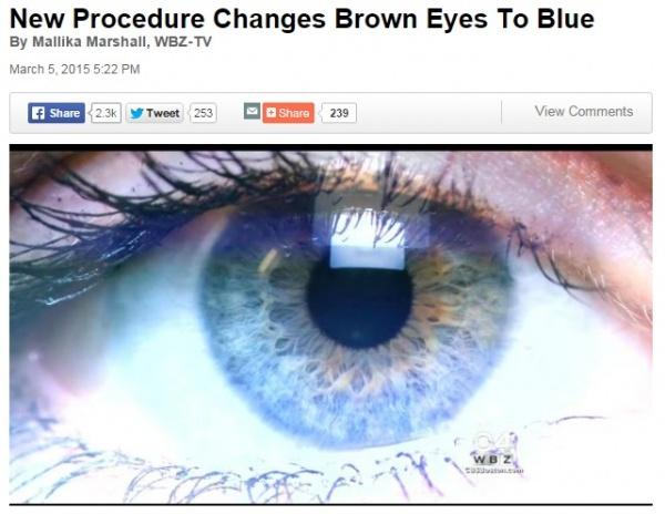 [画像] 【海外発!Breaking News】レーザーによりブルーの瞳を手に入れる!? 米国でもすでに実験段階。