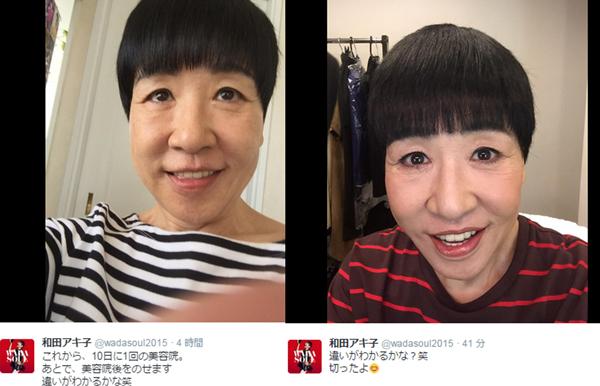 和田アキ子顔面崩壊 芸能人の整形外科失敗の画像まとめ!顔面崩壊や劣化を噂される有名人は?