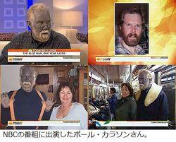 治療薬で肌が青くなった男性、テレビ番組出演を機に前向きな人生歩む。