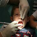 虫歯は削る必要なし? 最新の研究で「詰め物も不要」という実験結果に