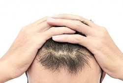 自毛植毛は2回したほうが効果的?