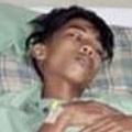腹部に残る「寄生性双生児」を摘出した15歳少年(出典:http://www.essentialbaby.com.au)