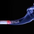 受動喫煙が子供の脳に悪影響 攻撃的になる可能性も モントリオール大調査