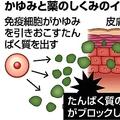 アトピー性皮膚炎のかゆみ抑える薬 京...