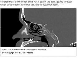 鼻の奥に歯が生えていた男性のCTスキャン画像(画像は『Live Science 2019年2月27日付「A Man's Trouble Smelling Was Caused By a Tooth Growing in His Nose」(Credit: Copyright 2019 BMJ Case Reports)』のスクリーンショット)