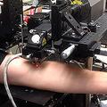 血流に乗って転移するがん細胞をレーザーで破壊 期待の新治療法