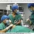 5歳男児のヒルの摘出手術の様子(画像は『Daily Star 2020年10月26日付「Huge leech pulled from young boy's throat after it lived there for over a year」(Image: Newsflash)』のスクリーンショット)