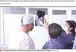 誕生した結合双生児の検査結果を分析する医師ら(画像は『Daily Star 2020年7月1日付「'Two-headed' baby born to baffled doctors and placed in intensive care」(Image: STV.UZ)』のスクリーンショット)