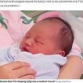 へその緒が首に6回も巻きつくも元気に産まれた赤ちゃん(画像は『Mirror 2020年8月6日付「Medical miracle as baby born with umbilical cord wrapped six times around neck survives」(Image: Real Press)』のスクリーンショット)