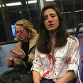フェイスブックに投稿された、血まみれとなったメラニア・ヘイモナトさん(右)とクリスさんの写真。(c)Facebook/Melania Geymonat