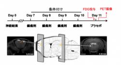 プラセボ効果に関わる脳領域。(画像:理化学研究所発表資料より)