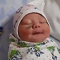 帝王切開で顔に大きな傷がついた赤ちゃん(画像は『Metro 2020年1月31日付「Doctor cut baby's face during c-section because it moved too much」(Picture: CEN/@trevogznie_novosti)』のスクリーンショット)