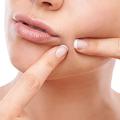 ニキビに関するさまざまな「疑問」を解消 皮膚科医に聞く定説の真偽
