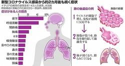 新型コロナウイルス感染から2カ月後の続く症状