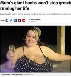 巨乳すぎてつらいと話す女性(画像は『Daily Record 2019年4月9日付「Mum's giant boobs won't stop growing and they're ruining her life」(Image: Caters News)』のスクリーンショット)