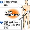 京アニ放火容疑者 死亡率は95%超