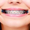 噛む力を失う?歯学博士が歯の矯正やインプラントに警鐘鳴らす