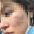 北の売春婦と暴言 韓国系に暴行