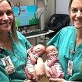 一卵性双生児のトーリ・ハワードさんとタラ・ドリンカードさんが一卵性双生児の出産に立ち会った/Piedmont Athens Regional