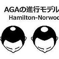 AGAの進行モデルの簡易版(銀座総合美容クリニック公式サイトより)