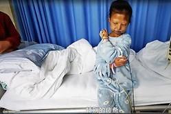 弟の治療費のために生活費を切り詰めて、栄養失調となった呉花燕さんは1月13日、亡くなった(スクリーンショット)