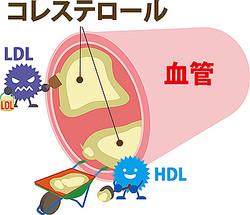 コレステロール 上がる 原因