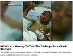 7歳少年ネットで流行の「ファイアー・チャレンジ」で大やけど(画像は『WKYC.com 2017年12月2日付「NC Mother's Warning: YouTube 'Fire Challenge' Lands Son In Burn Unit」』のスクリーンショット)