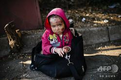 ギリシャ国境に近いマケドニア(現在の国名は北マケドニア)のゲブゲリヤで、セルビア国境に向かう列車を待つシリア人の子供。父親によるとこの子供は化学兵器攻撃で負傷したという(2015年8月4日撮影)。(c)DIMITAR DILKOFF / AFP
