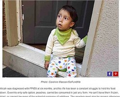 複数の稀な疾患を持つミカ・ガブリエル・マッソン・ロペス君(画像は『Oddity Central 2017年12月8日付「The Curious Case of a Child Who Can't Eat Anything But Peaches」(Photo: Caroline Masson/GoFundMe)』のスクリーンショット)