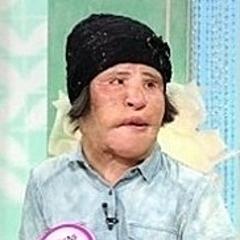 \u201c扇風機おばさん\u201dが死去\u2026整形の副作用で苦しむ姿が日本でも話題に