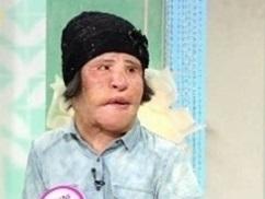 """""""扇風機おばさん""""が死去…整形の副作用で苦しむ姿が日本でも話題に"""