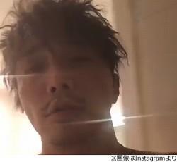 """成宮寛貴が""""ごっこ遊び""""でケガ、全治3か月"""