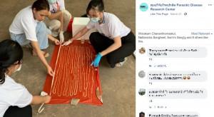 [画像] 【海外発!Breaking News】排泄物から長さ18メートルの寄生虫 医師ら「タイ国内では過去50年で最長」