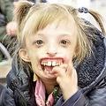 手術を受けて初めて笑顔を見せた6歳少女(画像は『Siberian Times 2019年10月3日付「Girl, 6, born without half her face returns to Russia laughing for first time after surgery in UK」(Pictures: Valeria Sukhova)』のスクリーンショット)