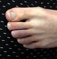 「俺、足の指が変なんやけど」感染した14歳、軽症でも長引く後遺症