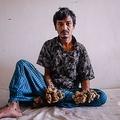 バングラデシュのダッカ医科大学病院で、木の皮のような巨大なイボが生じた手足を見せるアブル・バジャンダルさん(2019年6月24日撮影)。(c)AFP=時事/AFPBB News