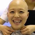 「全身脱毛症」公表アイドルの密着に反響 「意義のある企画」