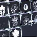 40代男性から700以上もの寄生虫が見つかる(画像は『Mirror 2019年11月20日付「Man found with 700 tapeworms in his brain, chest and lungs after eating pork」』のスクリーンショット)
